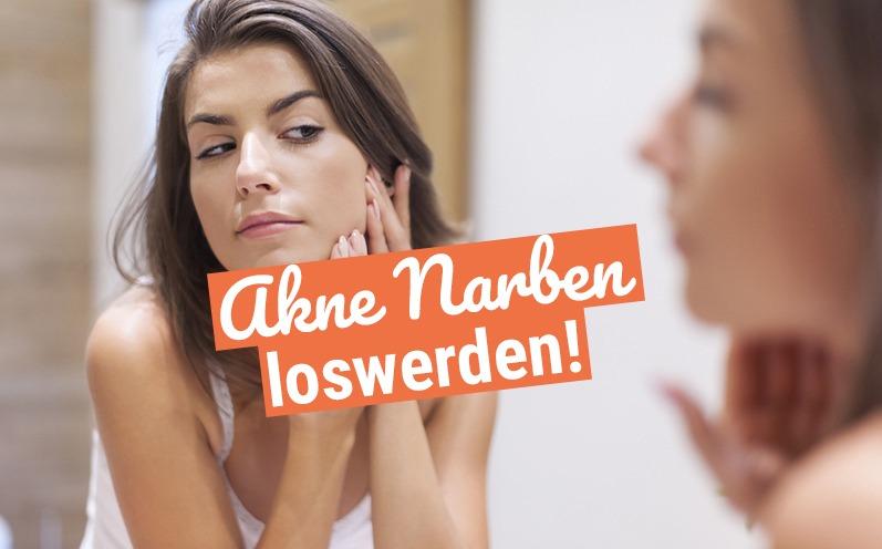Akne Narben loswerden: So geht das!