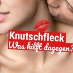 Knutschfleck: Was hilft dagegen?