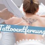 Tattooentfernung: Darauf solltest Du achten